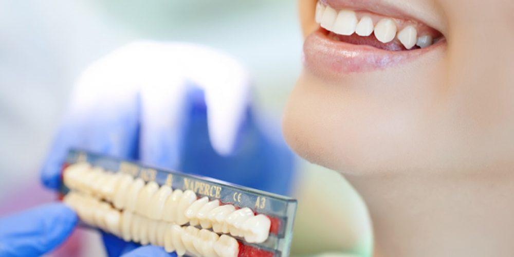 Comment avoir recours à l'implant dentaire ?