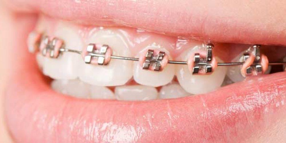 Orthodontie : quelles sont les solutions alternatives à l'appareil dentaire ?