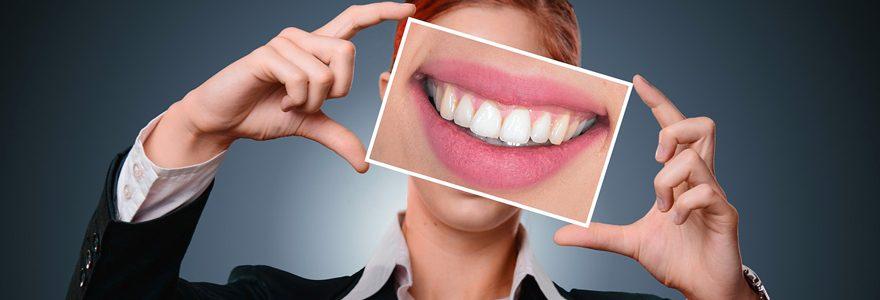 Quels sont les avantages d'une colle dentaire ?