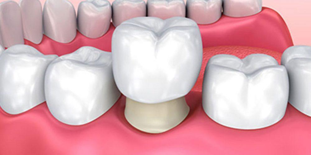 Les avantages d'une couronne dentaire