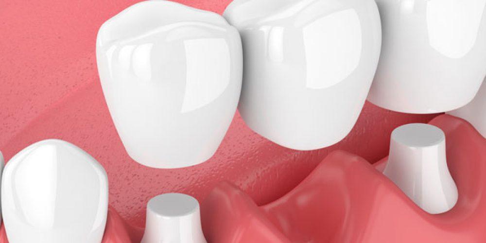 Quand la pose d'une couronne dentaire devient nécessaire ?