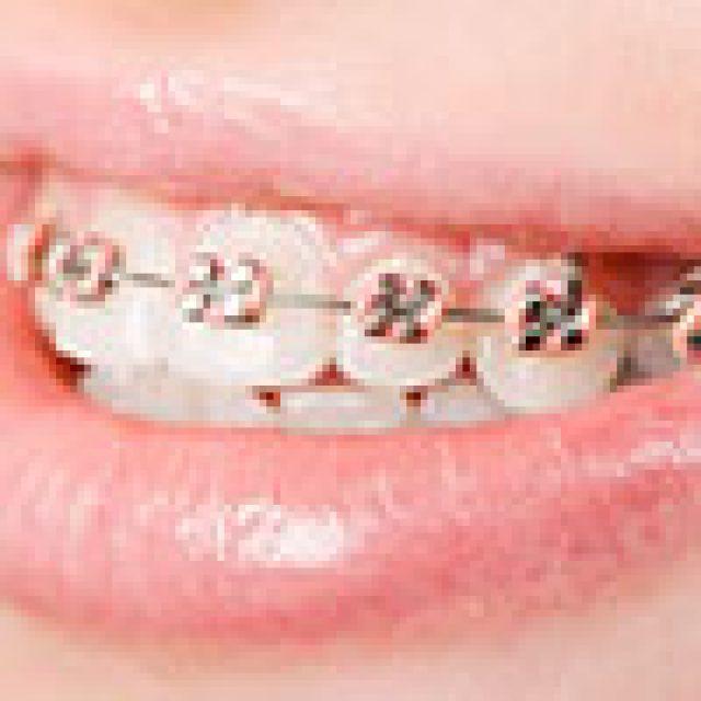 L'orthopédie dento-faciale