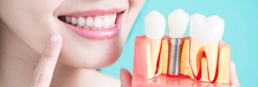 Est-ce douloureux de se faire poser un implant dentaire ?