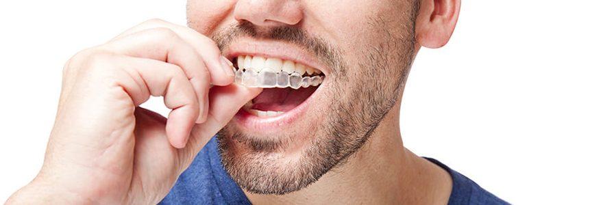 Quelles sont les solutions d'orthodontie invisible?